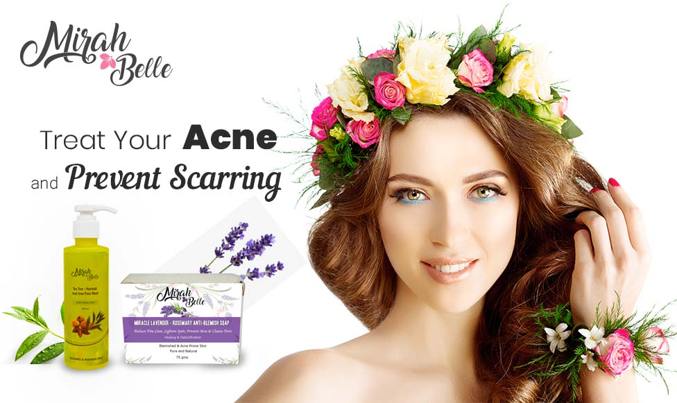 How to Treat Your Acne And Prevent Scarring