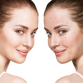 Acne & Pimples Relief